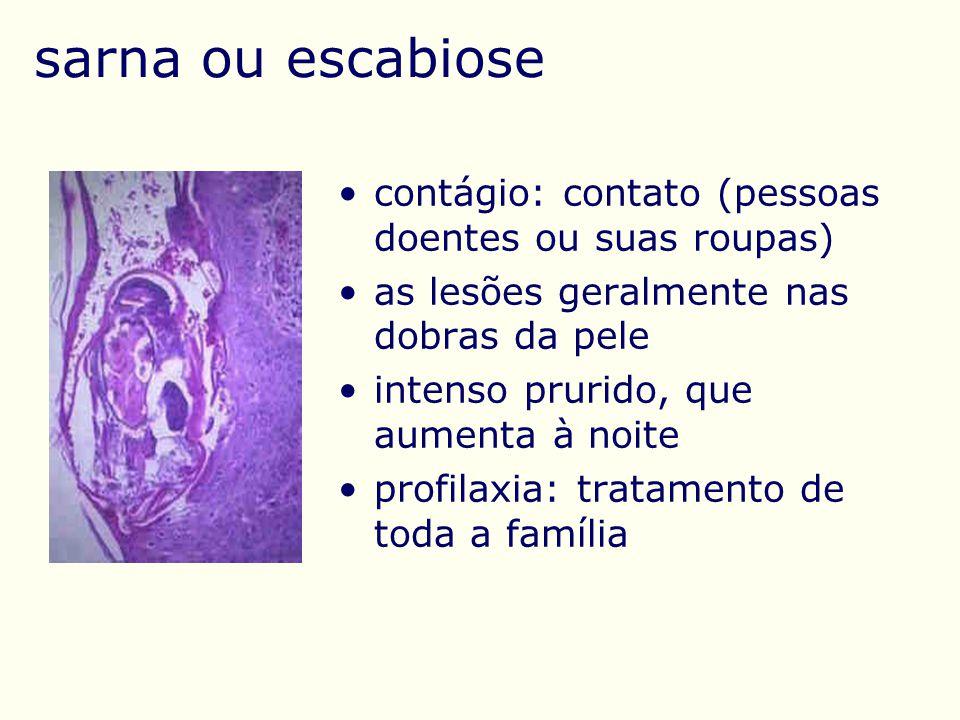 sarna ou escabiose contágio: contato (pessoas doentes ou suas roupas)