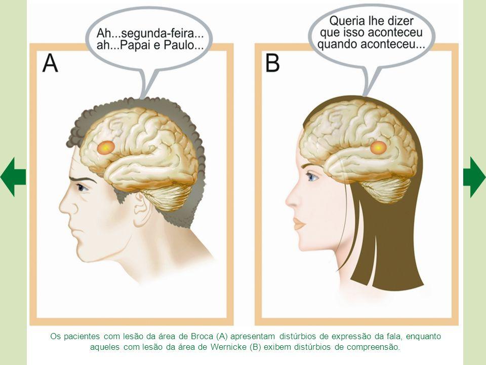 Os pacientes com lesão da área de Broca (A) apresentam distúrbios de expressão da fala, enquanto aqueles com lesão da área de Wernicke (B) exibem distúrbios de compreensão.