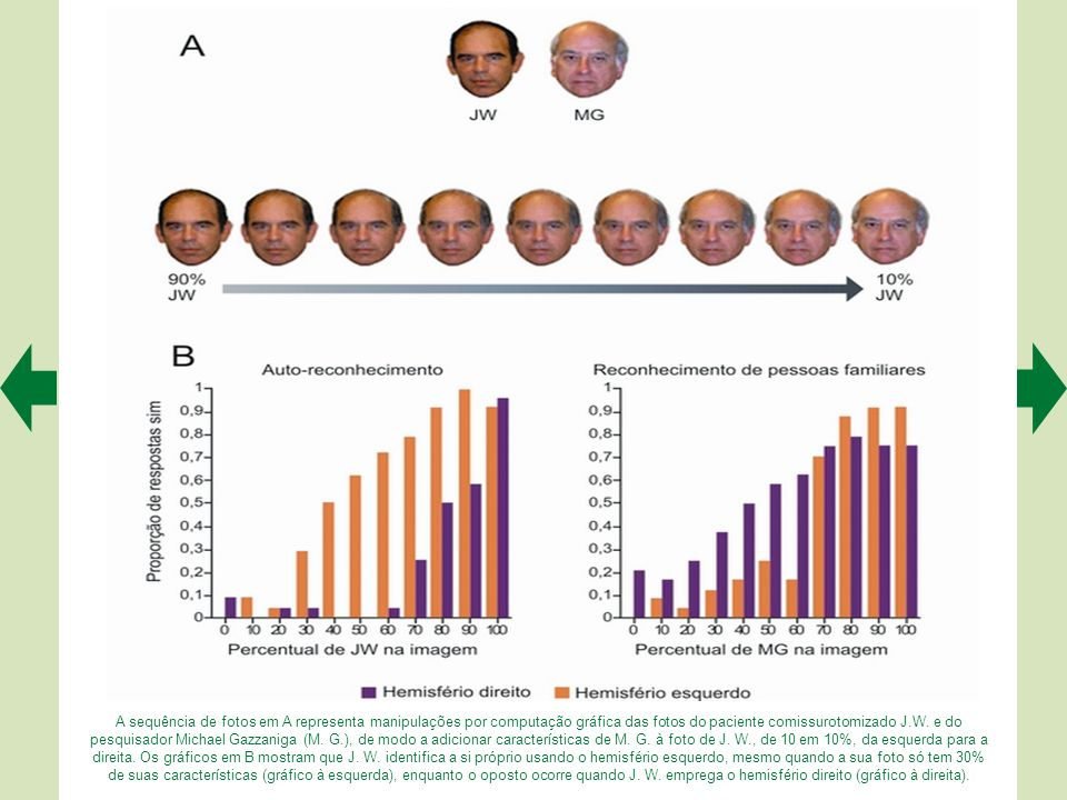 A sequência de fotos em A representa manipulações por computação gráfica das fotos do paciente comissurotomizado J.W.