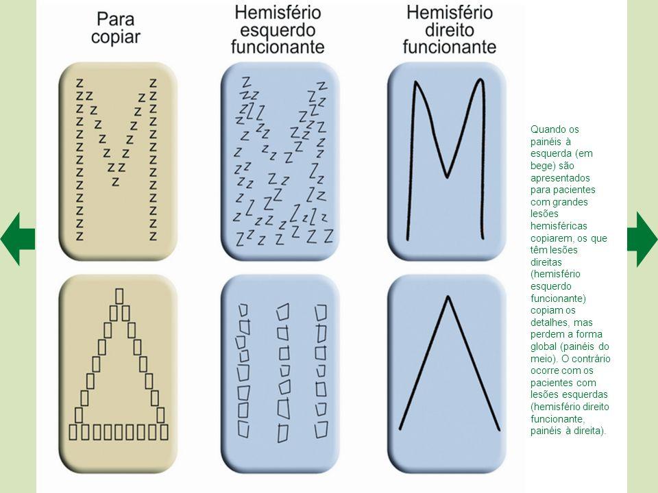 Quando os painéis à esquerda (em bege) são apresentados para pacientes com grandes lesões hemisféricas copiarem, os que têm lesões direitas (hemisfério esquerdo funcionante) copiam os detalhes, mas perdem a forma global (painéis do meio).