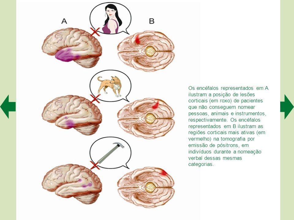 Os encéfalos representados em A ilustram a posição de lesões corticais (em roxo) de pacientes que não conseguem nomear pessoas, animais e instrumentos, respectivamente.