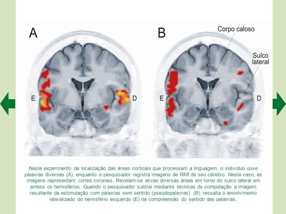 Neste experimento de localização das áreas corticais que processam a linguagem, o indivíduo ouve