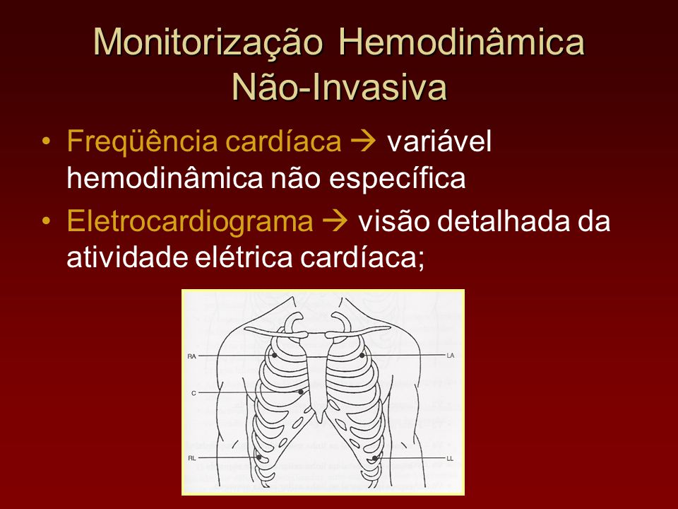 Monitorização Hemodinâmica Não-Invasiva