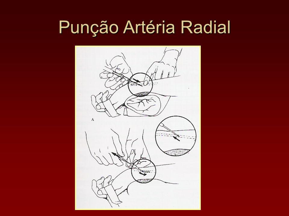 Punção Artéria Radial