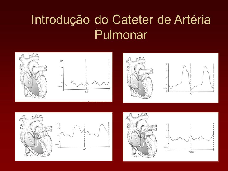 Introdução do Cateter de Artéria Pulmonar