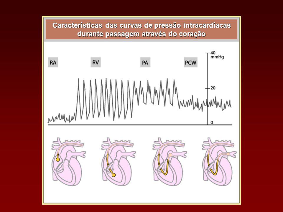 Características das curvas de pressão intracardíacas durante passagem através do coração