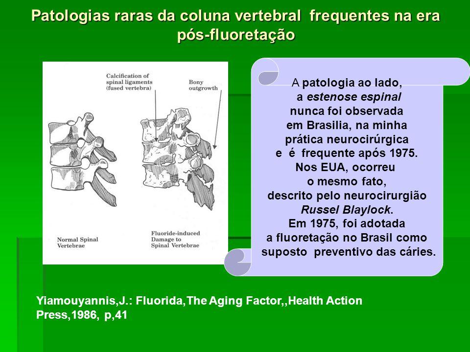 Patologias raras da coluna vertebral frequentes na era pós-fluoretação