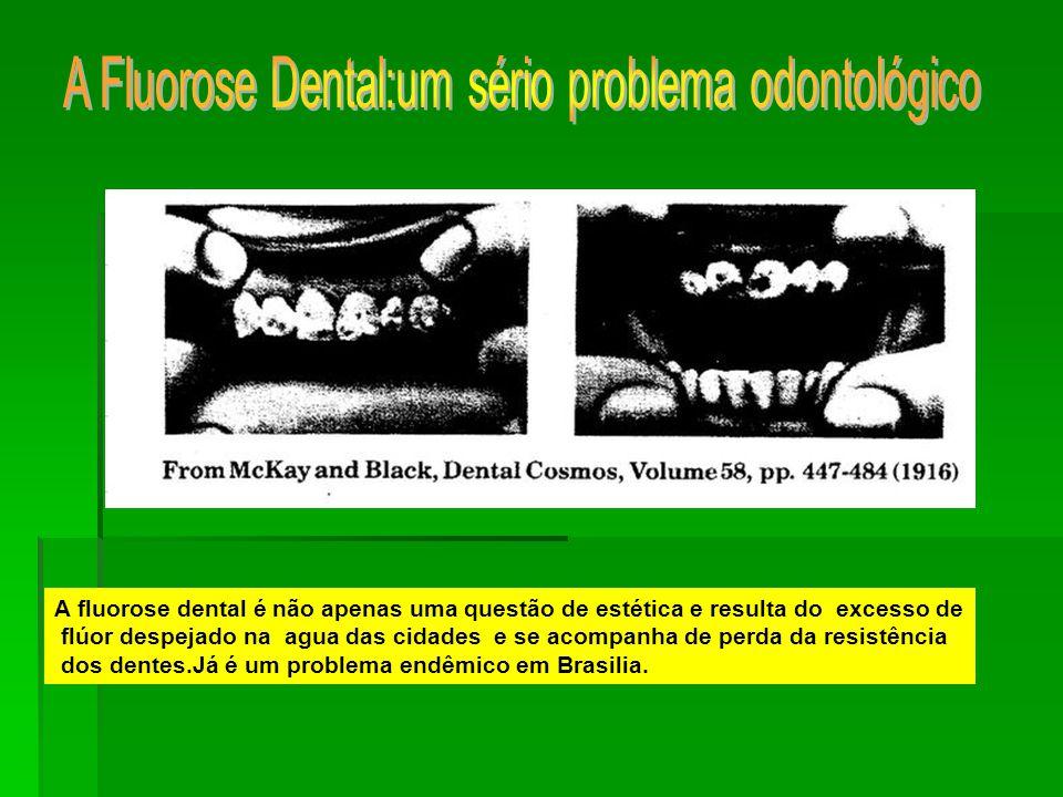A Fluorose Dental:um sério problema odontológico