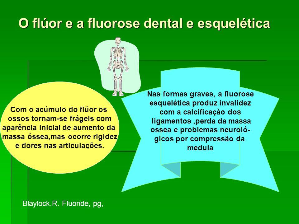 O flúor e a fluorose dental e esquelética