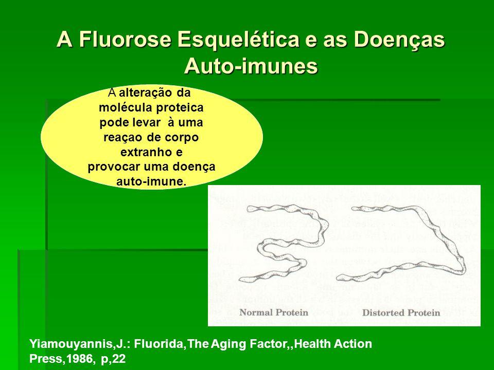 A Fluorose Esquelética e as Doenças Auto-imunes