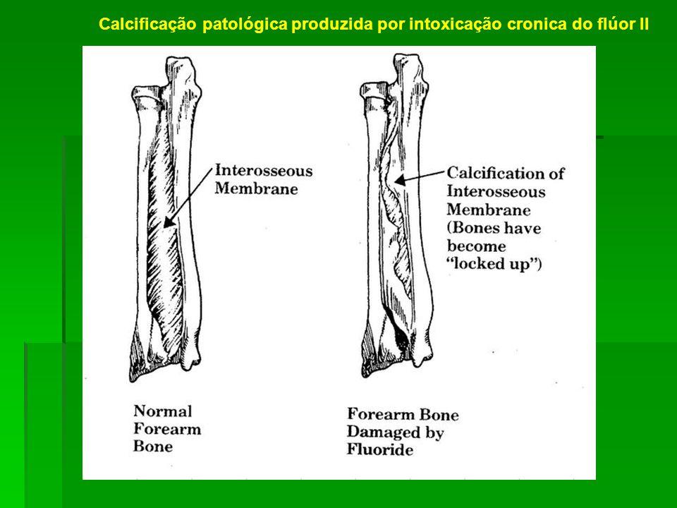 Calcificação patológica produzida por intoxicação cronica do flúor II