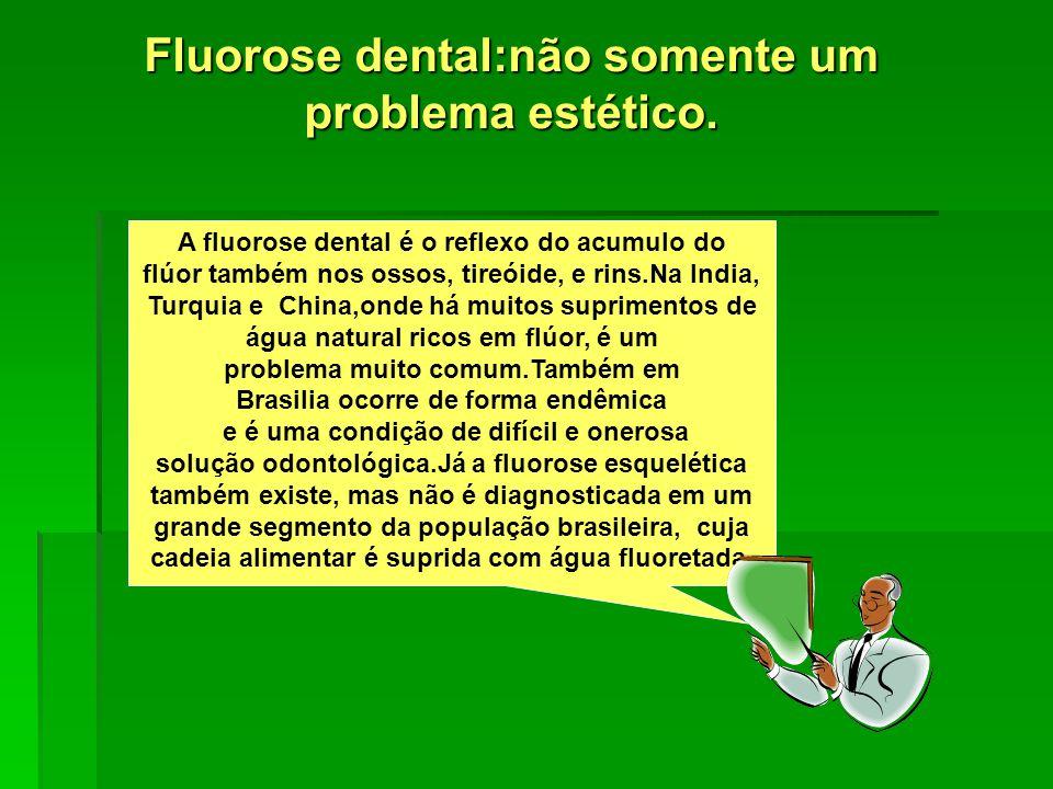 Fluorose dental:não somente um problema estético.