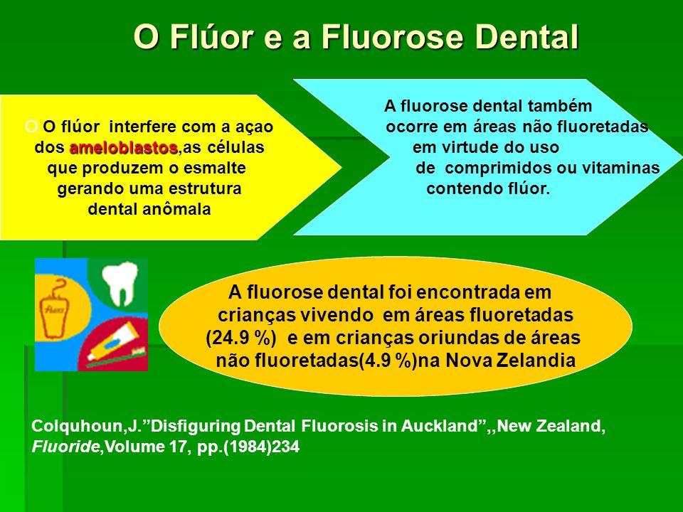O Flúor e a Fluorose Dental