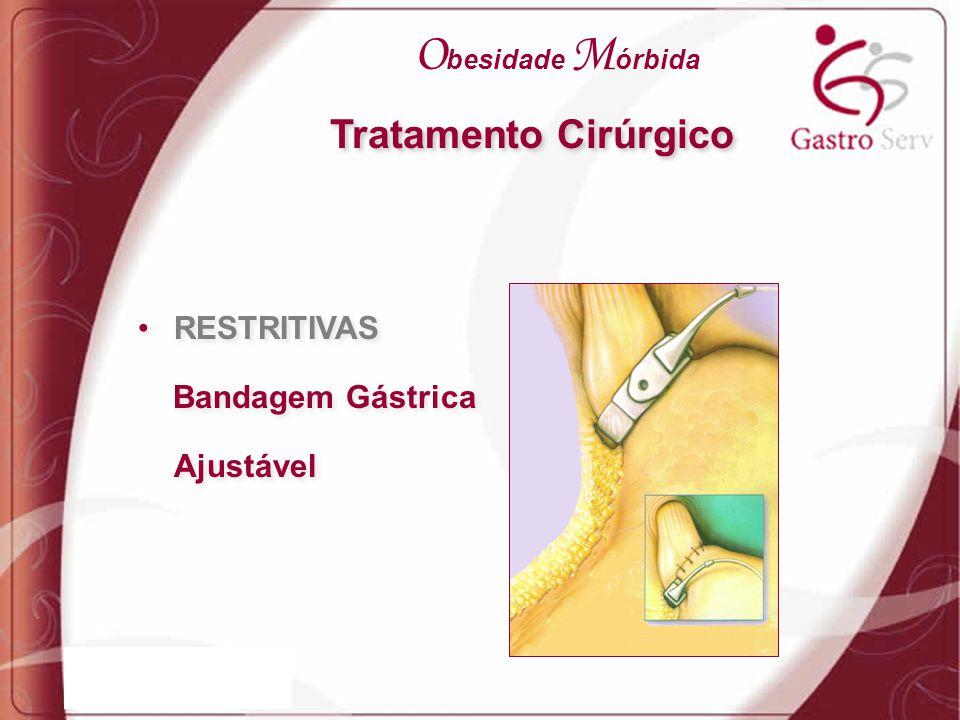 Obesidade Mórbida Tratamento Cirúrgico RESTRITIVAS Bandagem Gástrica