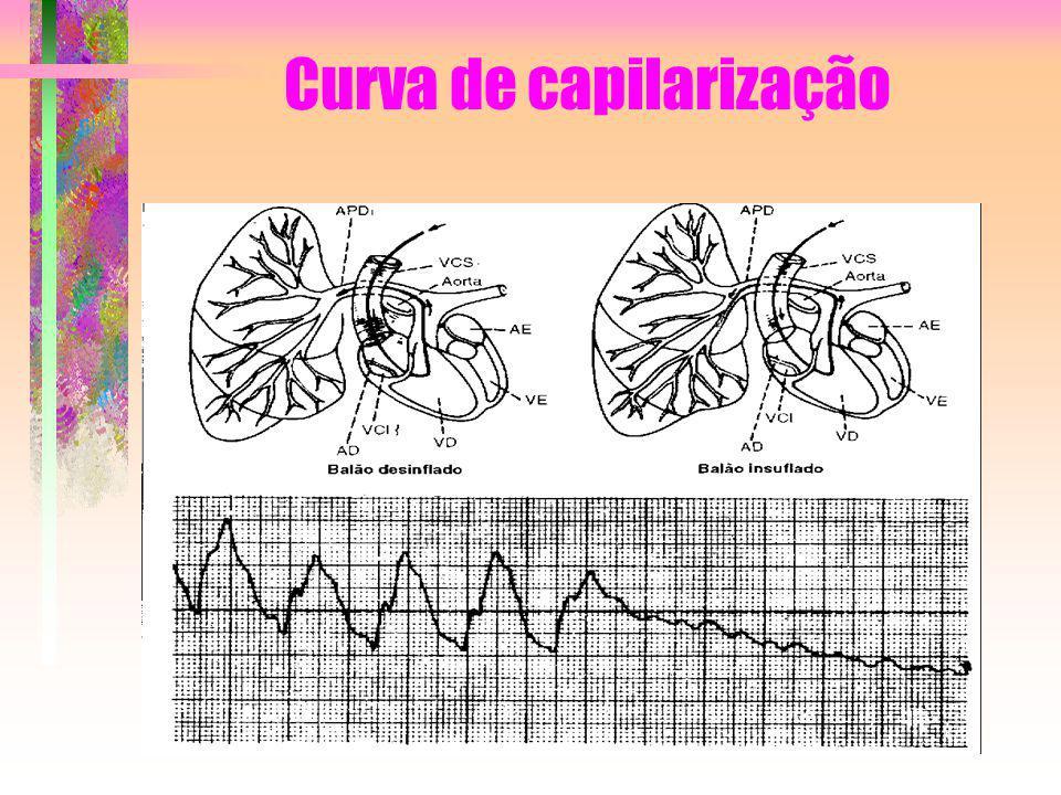 Curva de capilarização