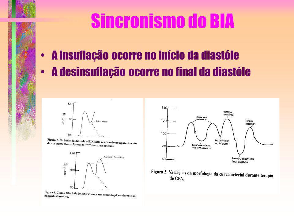 Sincronismo do BIA A insuflação ocorre no início da diastóle
