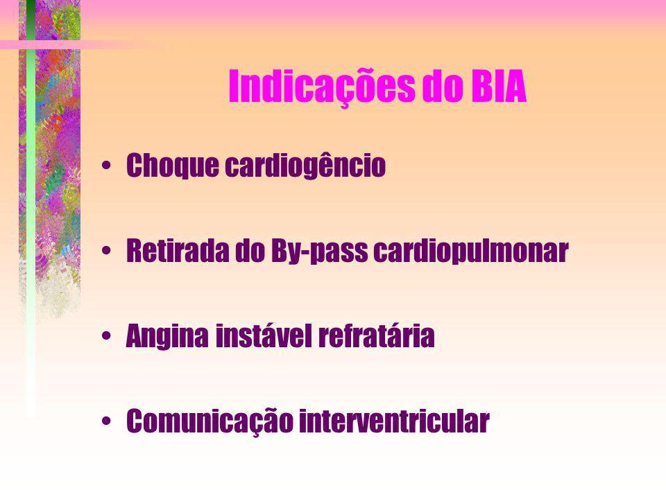Indicações do BIA Choque cardiogêncio