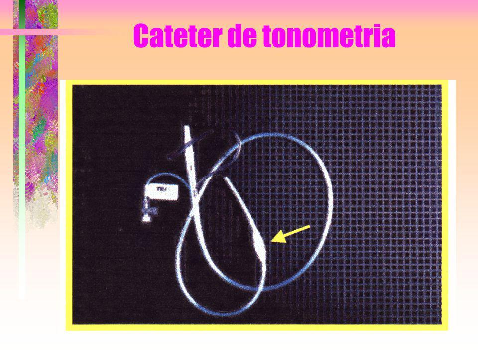 Cateter de tonometria