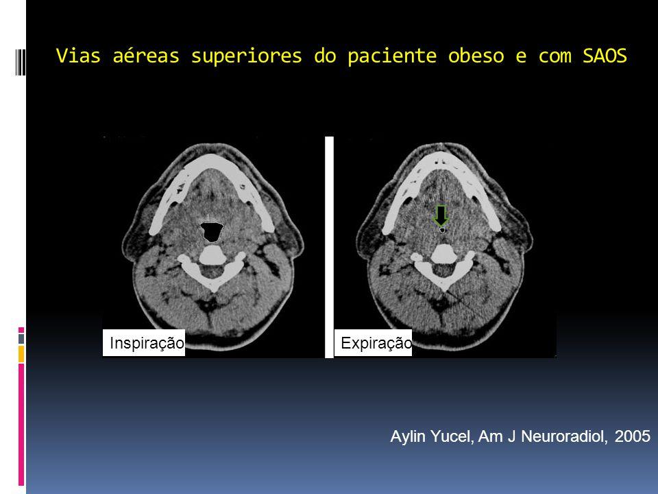 Vias aéreas superiores do paciente obeso e com SAOS