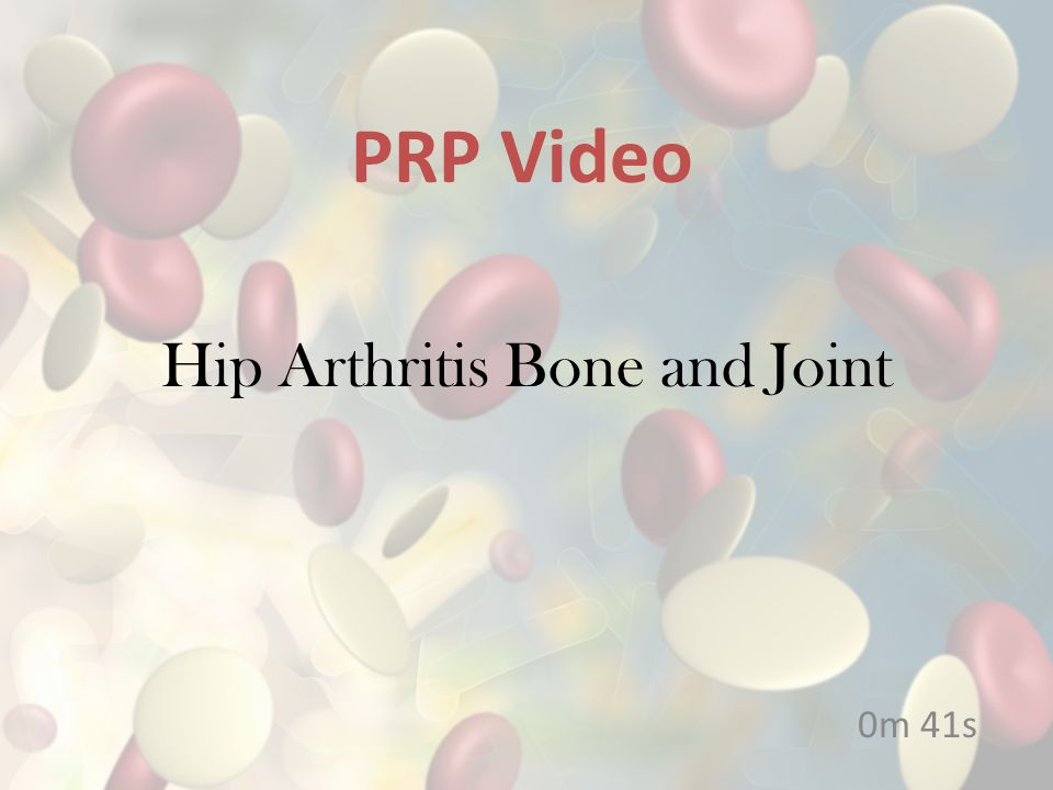 Hip Arthritis Bone and Joint