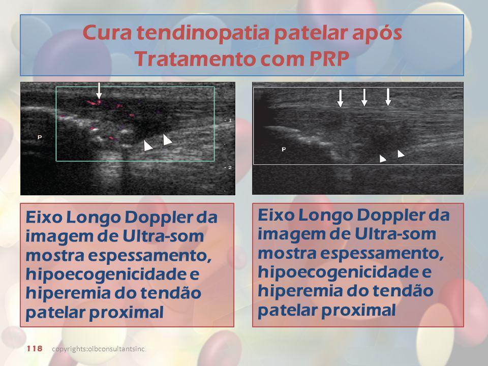 Cura tendinopatia patelar após Tratamento com PRP