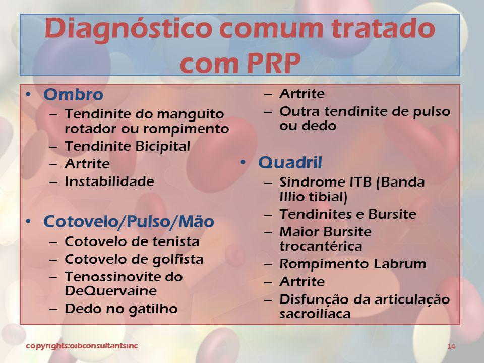 Diagnóstico comum tratado com PRP