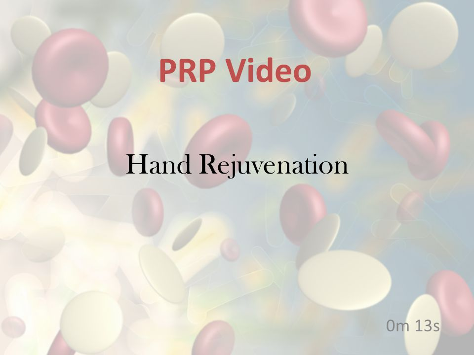 PRP Video Hand Rejuvenation 0m 13s