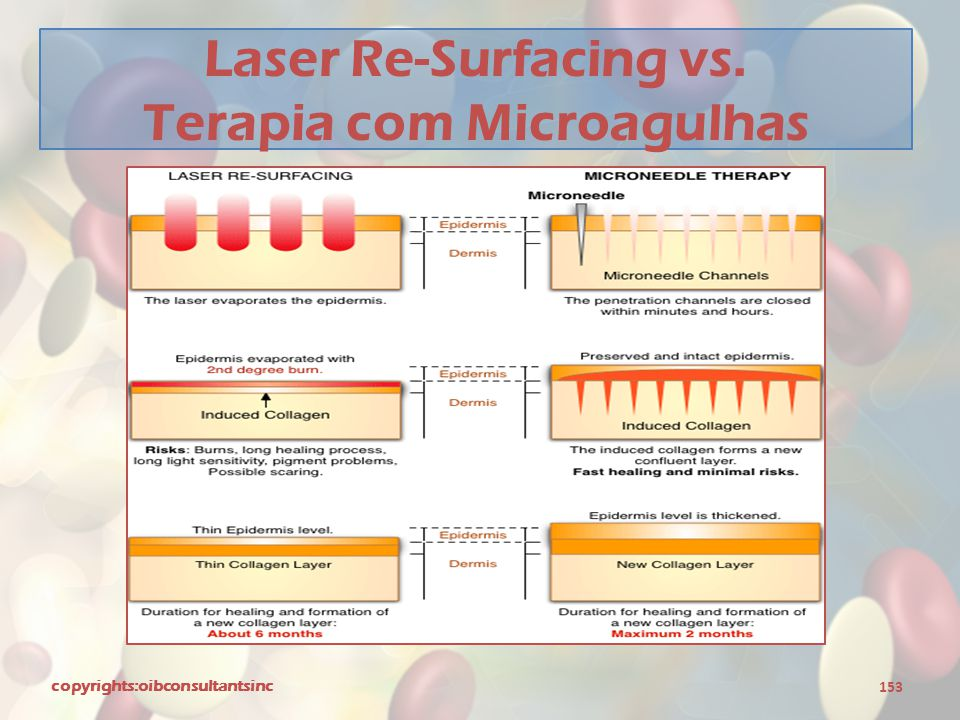Laser Re-Surfacing vs. Terapia com Microagulhas