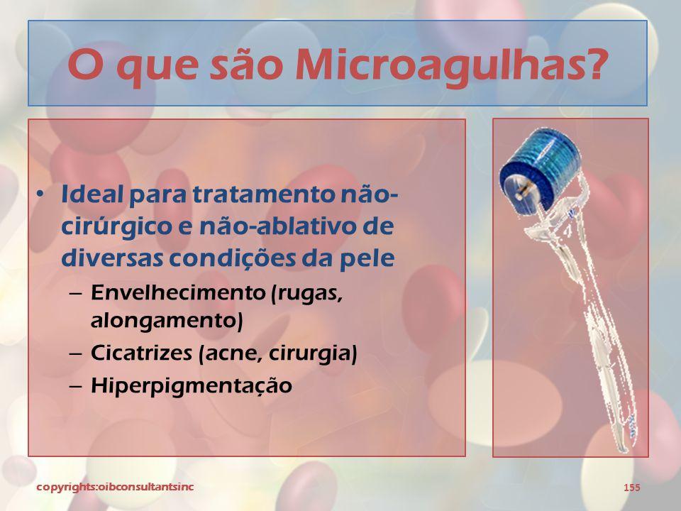 O que são Microagulhas Ideal para tratamento não-cirúrgico e não-ablativo de diversas condições da pele.