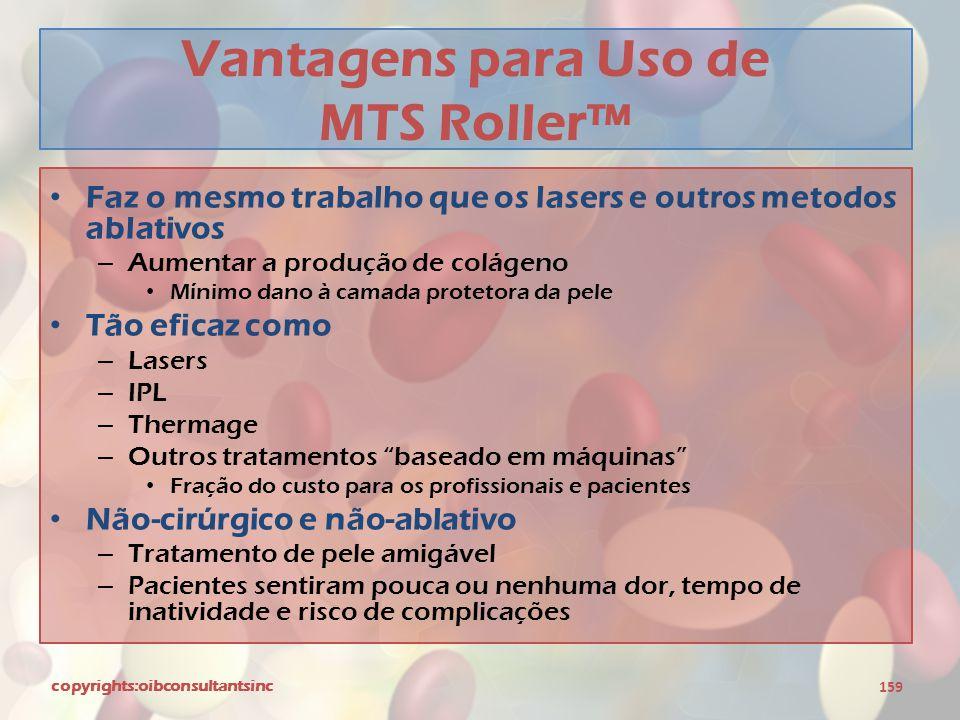 Vantagens para Uso de MTS Roller™