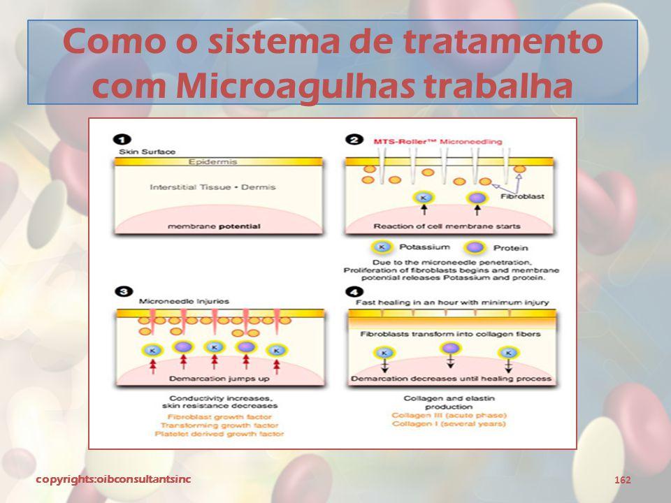 Como o sistema de tratamento com Microagulhas trabalha