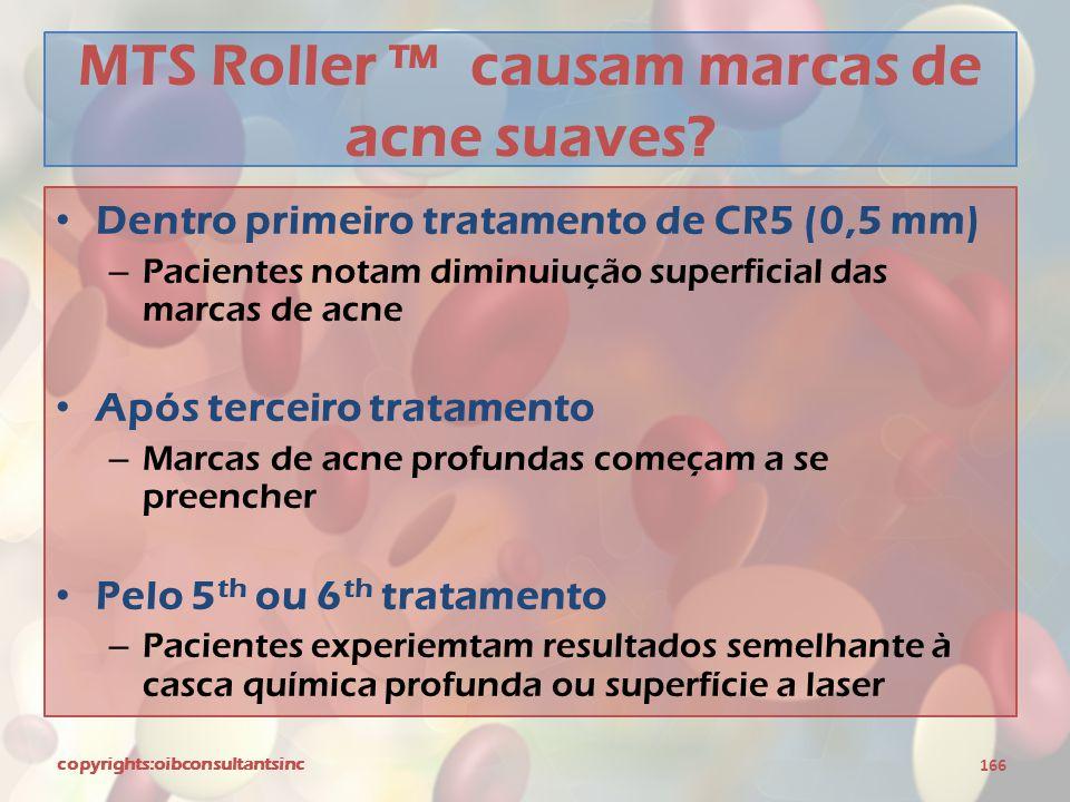 MTS Roller ™ causam marcas de acne suaves