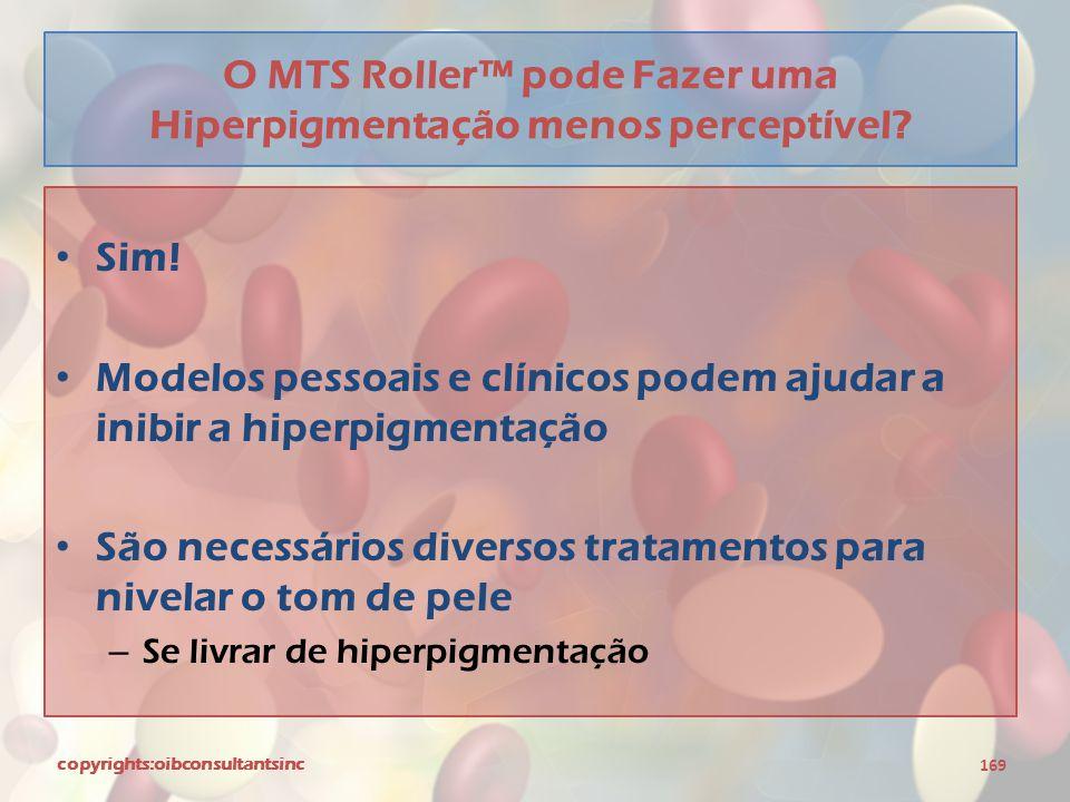 O MTS Roller™ pode Fazer uma Hiperpigmentação menos perceptível