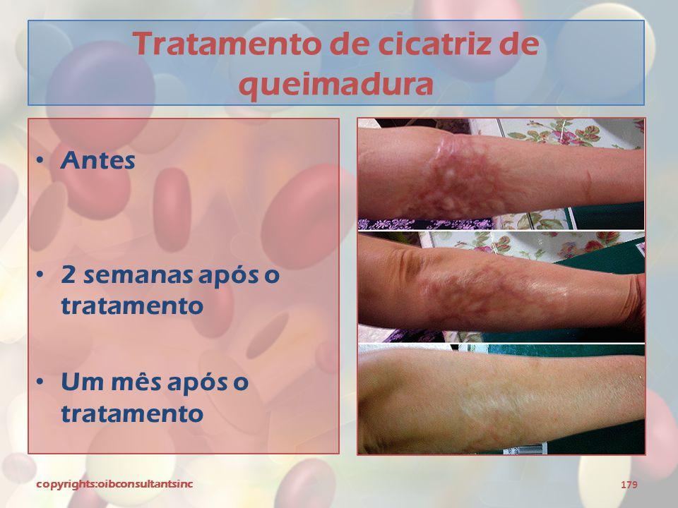 Tratamento de cicatriz de queimadura