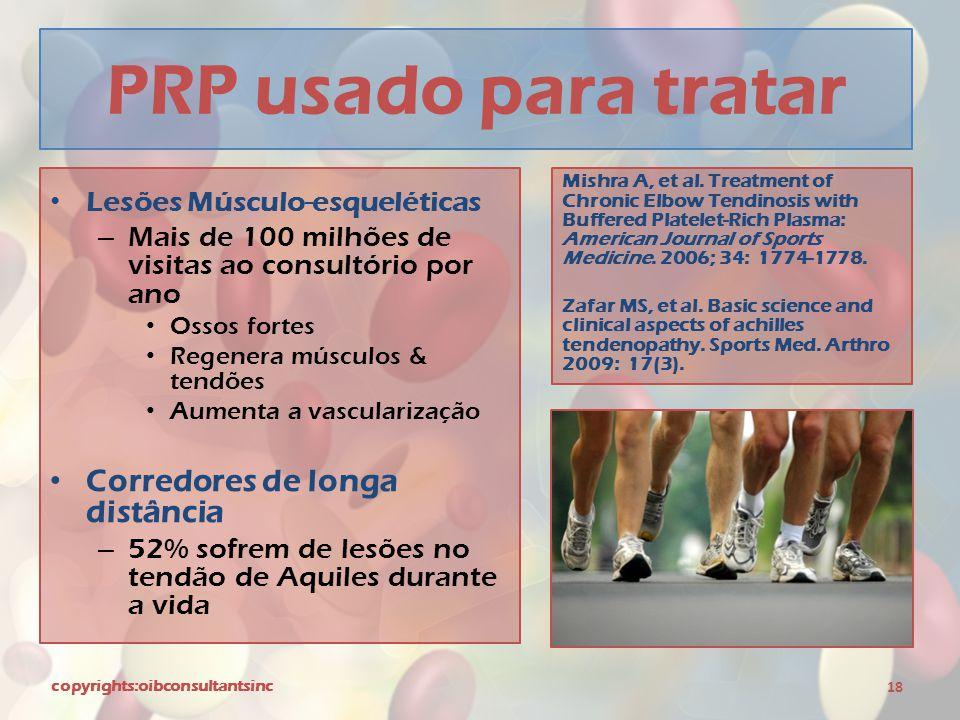PRP usado para tratar Corredores de longa distância