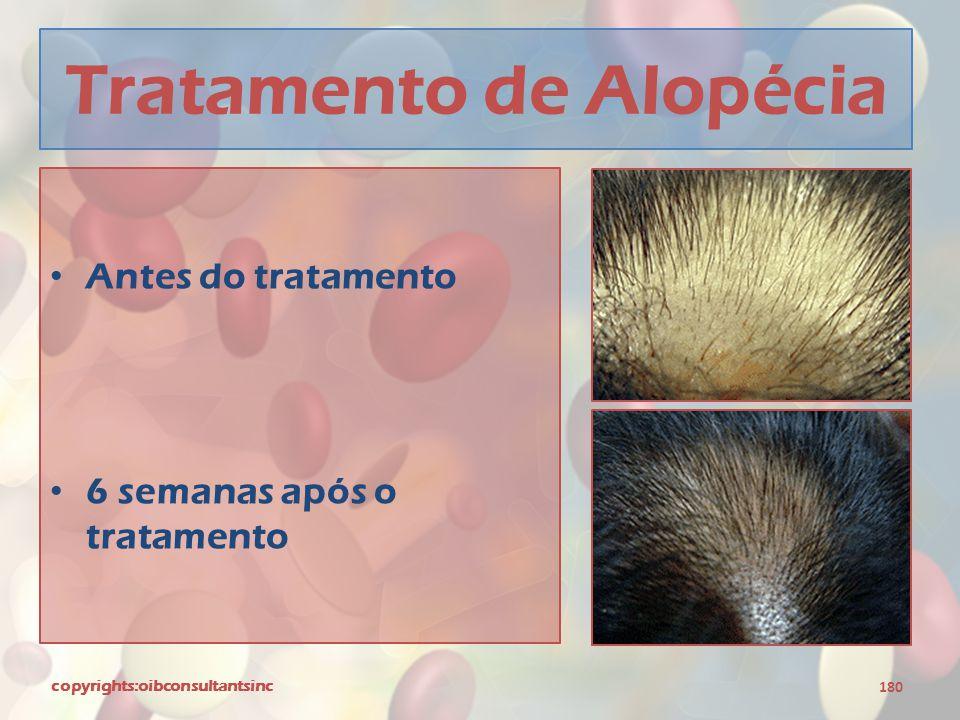Tratamento de Alopécia