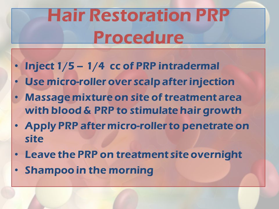 Hair Restoration PRP Procedure
