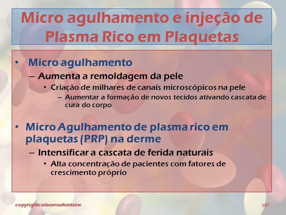 Micro agulhamento e injeção de Plasma Rico em Plaquetas