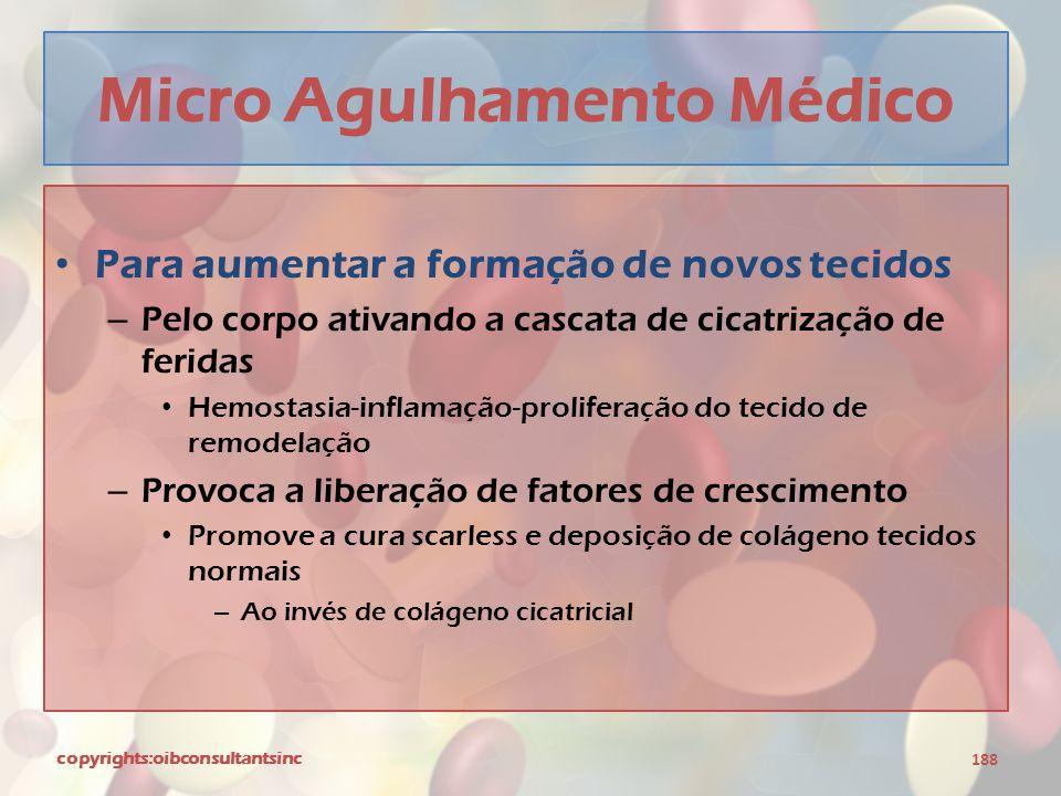 Micro Agulhamento Médico