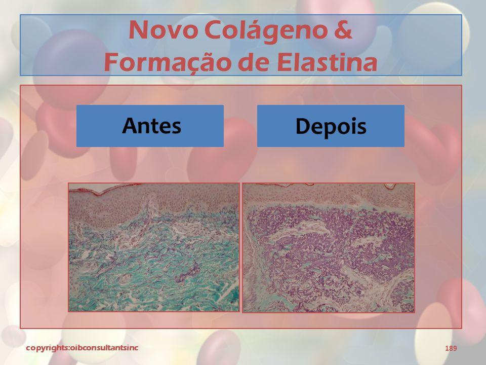 Novo Colágeno & Formação de Elastina