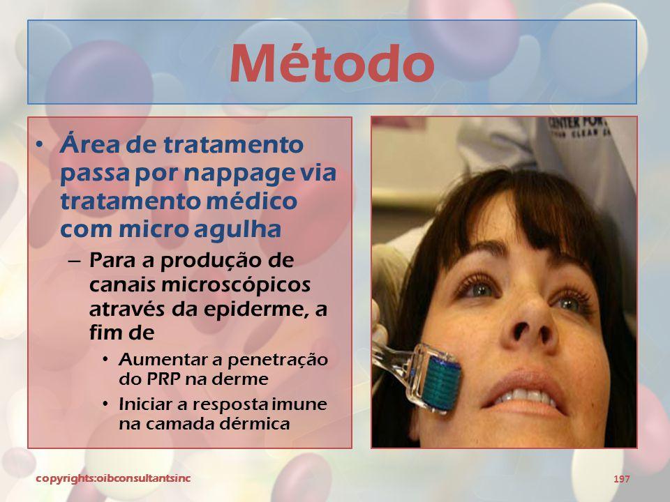 Método Área de tratamento passa por nappage via tratamento médico com micro agulha.