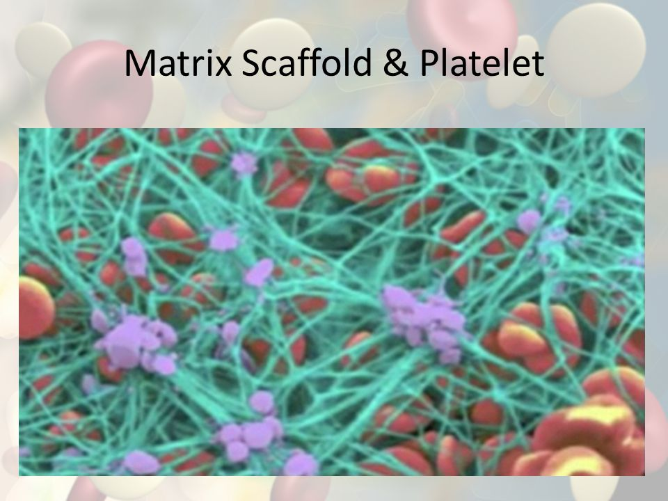 Matrix Scaffold & Platelet