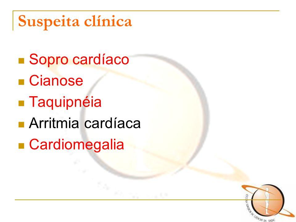 Suspeita clínica Sopro cardíaco Cianose Taquipnéia Arritmia cardíaca