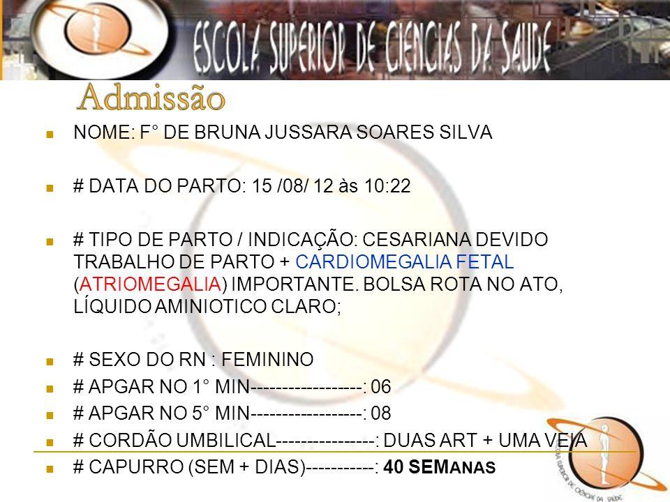 Admissão NOME: F° DE BRUNA JUSSARA SOARES SILVA