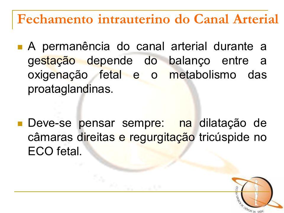 Fechamento intrauterino do Canal Arterial