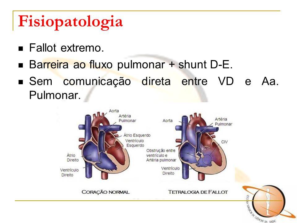 Fisiopatologia Fallot extremo. Barreira ao fluxo pulmonar + shunt D-E.