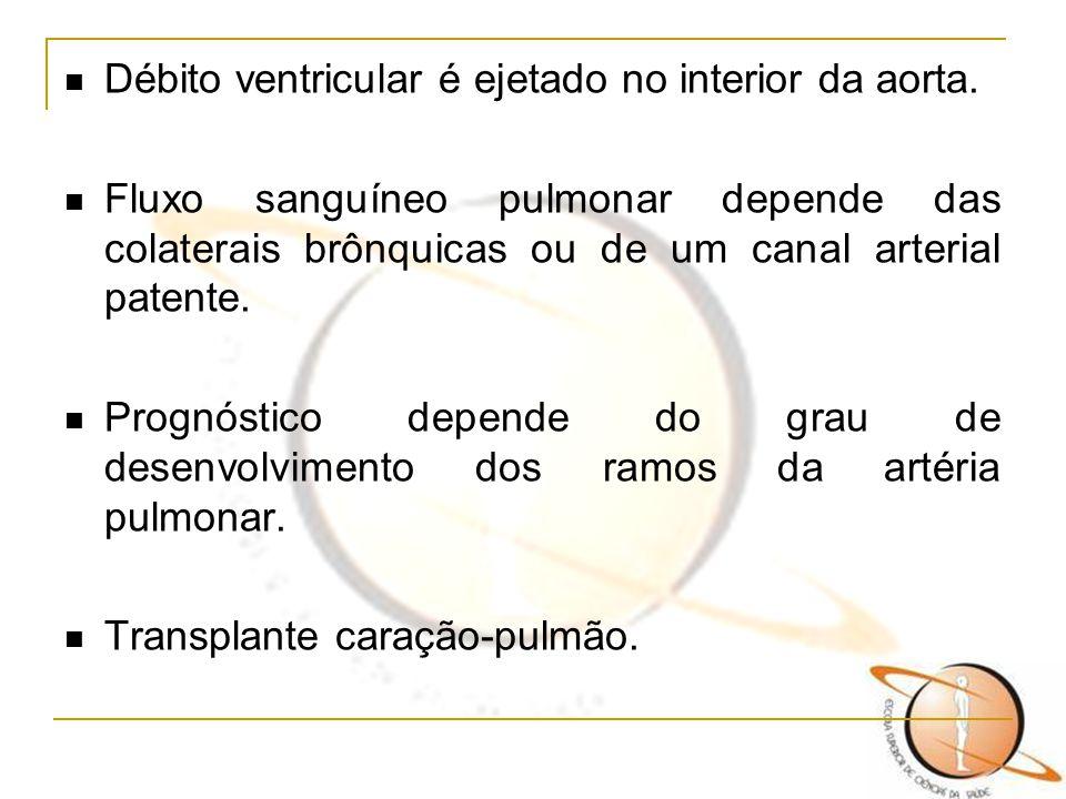 Débito ventricular é ejetado no interior da aorta.