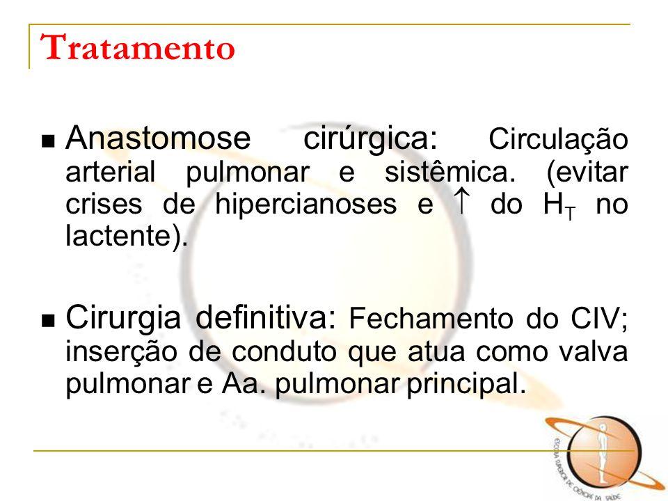 Tratamento Anastomose cirúrgica: Circulação arterial pulmonar e sistêmica. (evitar crises de hipercianoses e  do HT no lactente).