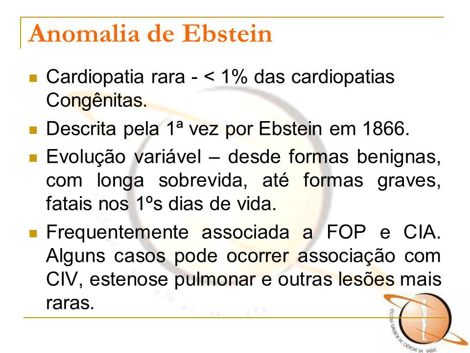 Anomalia de Ebstein Cardiopatia rara - < 1% das cardiopatias Congênitas. Descrita pela 1ª vez por Ebstein em 1866.