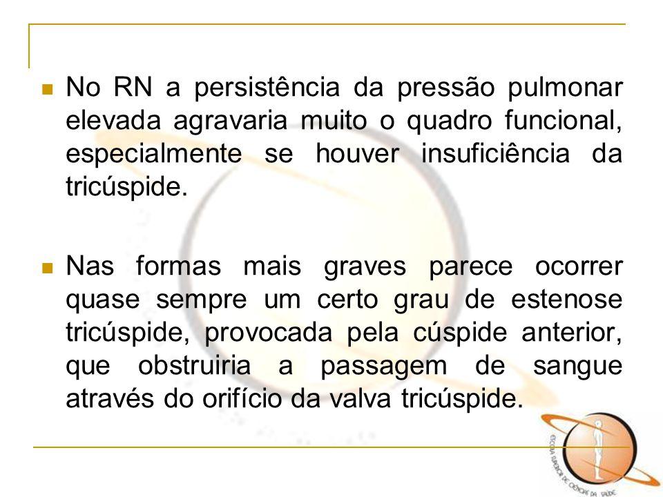 No RN a persistência da pressão pulmonar elevada agravaria muito o quadro funcional, especialmente se houver insuficiência da tricúspide.